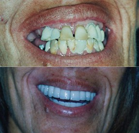 Before and After Porcelain Veneers Buenos Aires