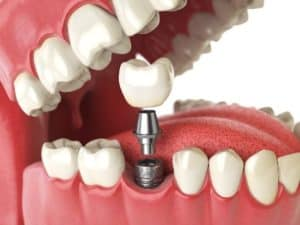 Dental Implant Placement available in Spokane, WA
