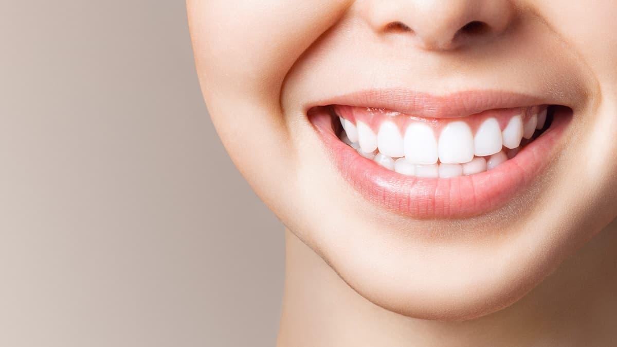 Ways to Achieve a Whiter Smile in Spokane at 5 Mile Smiles