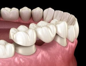Restorative Dental Bridge Placement