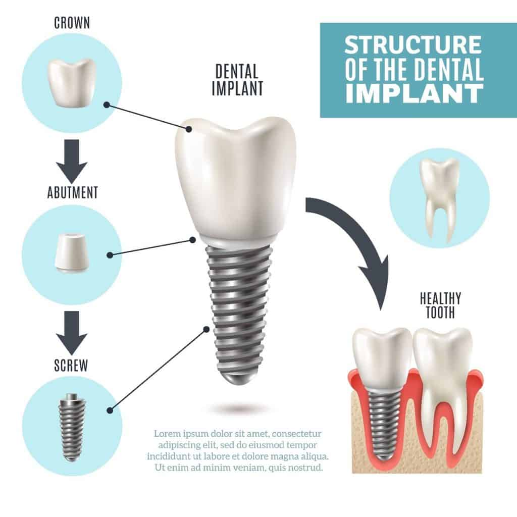 Dental Implant Structure Infographic