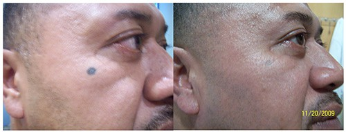 Facial Tattoo Removal Before After