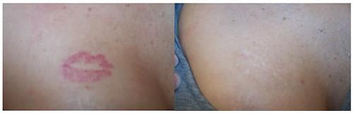 Complete tattoo Removal Patient Jupiter, FL