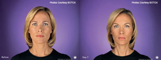 BOTOX Treatment Results Jupiter, FL