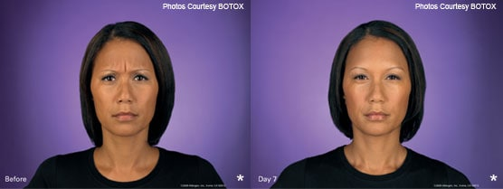 Botox Injection Patient Photos Jupiter, FL