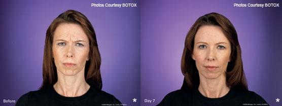Botox Patient Jupiter, FL