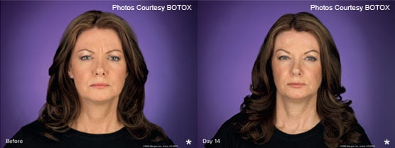 Botox Patient Before After Jupiter, FL