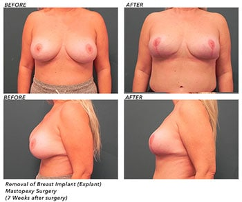 Breast Explant Patient Before After Jupiter, FL