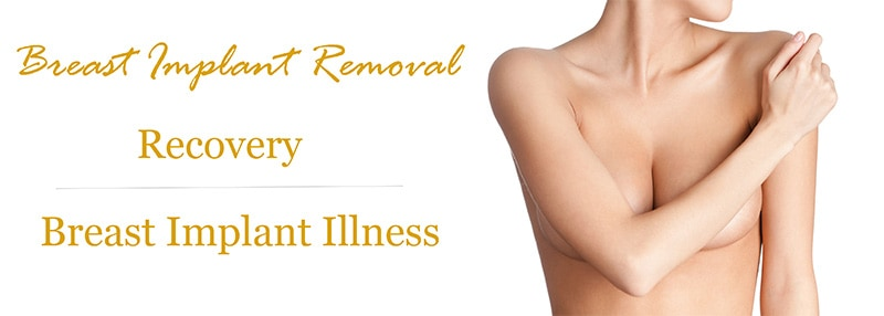 Breast Explant (BII) Recovery Ft. Lauderdale