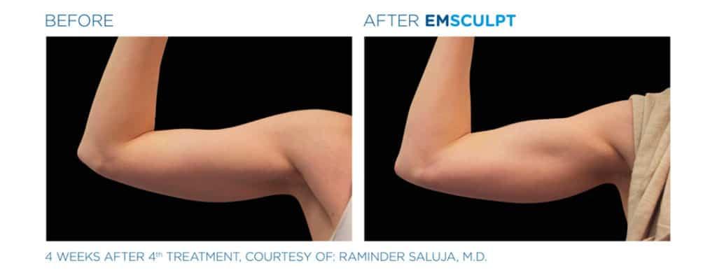 Emsculpt_Bicep Before & After