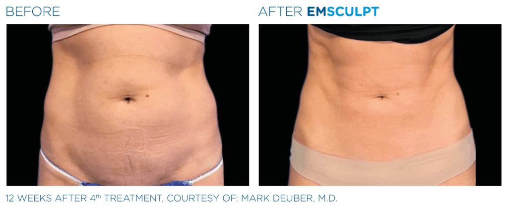 Emsculpt_Before & After Female