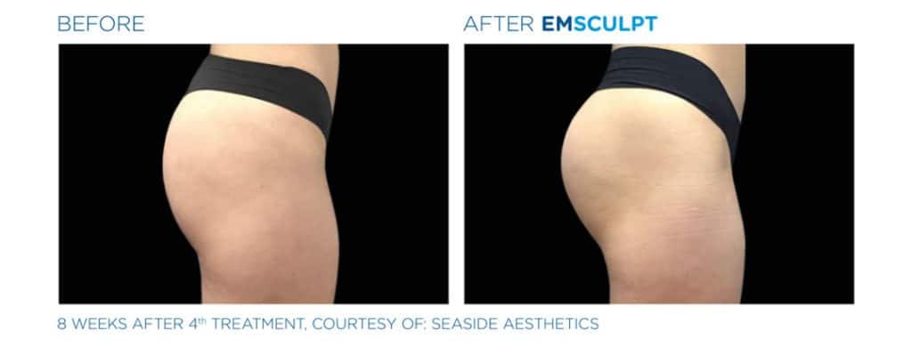 Emsculpt_Butt Before & After