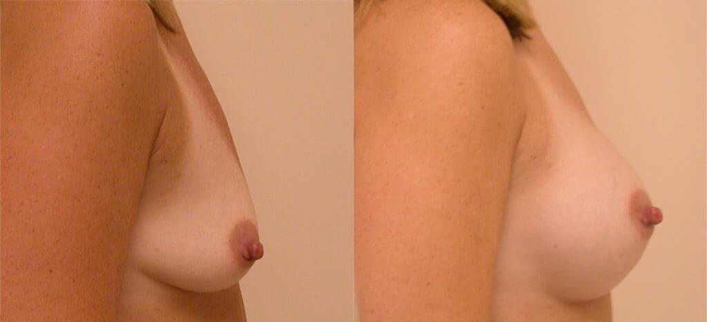 Choose Breast Implant Size in CC Boston
