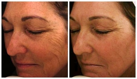 Before and After SecretRF Microneedling Treatment of wrinkles-after 6 treatments 4 weeks apart(Photo Courtesy of Zaren Medical)