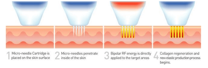 Diagram showing how SecretRF Microneedles interact with the skin to promote new collagen formation(Photo Courtesy of Zarin Medical)