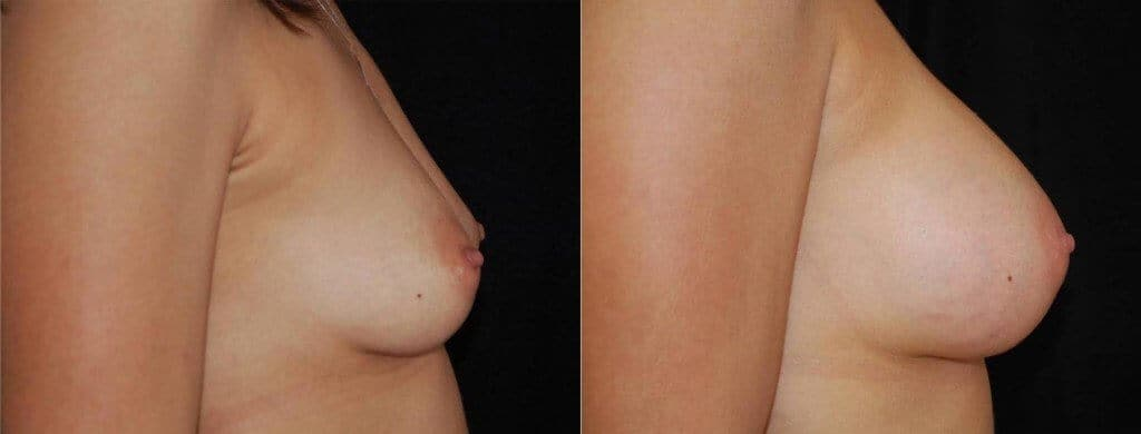 Breast Implant Size Tests Boston