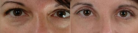 Lower Eyelid Dark Circle Removal Boston