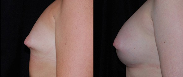 Before and After Breast Deformity Correction Boston