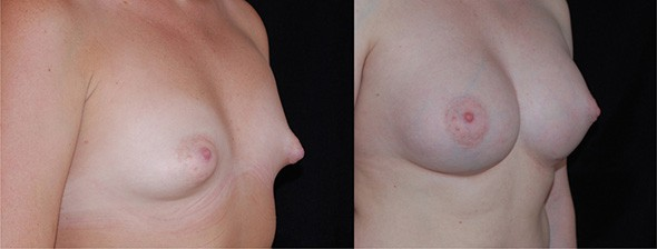 Tubular Breast Correction Boston