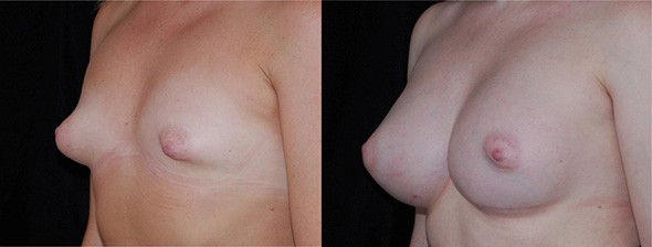 Breast Deformity Correction Boston