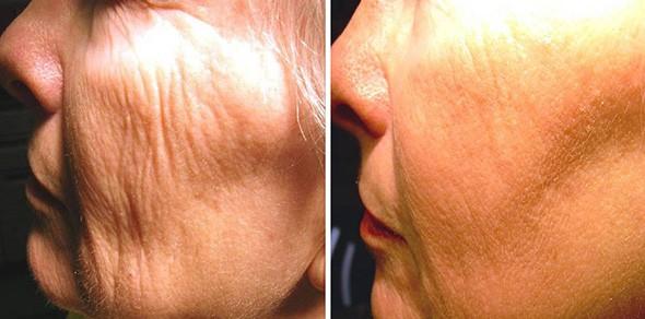 No-Downtime Laser Skin Resurfacing Boston