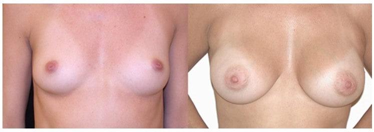 Sub muscular breast augmentation Boston
