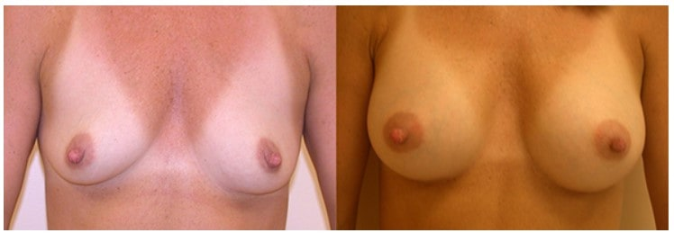 Before & after breast augmentation Boston