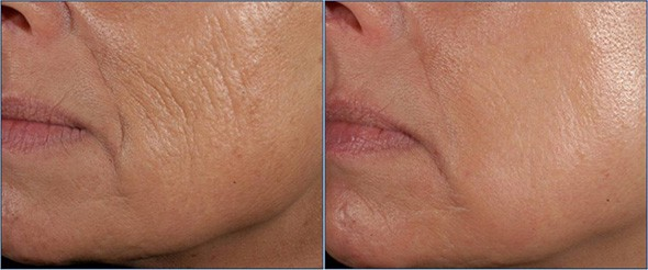 Wrinkle Treatment Boston