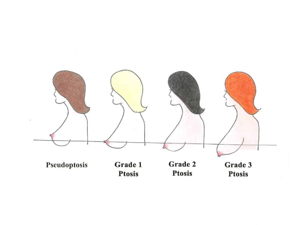 Grades of mammary ptosis or sagging of the breast