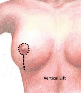 Vertical Mastopexy or Breast Lift with no scar underneath the breast