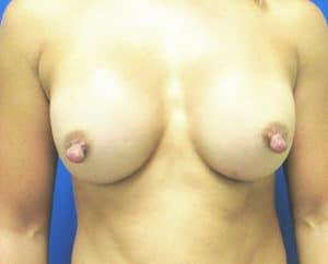 Breast Augmentation Before and After Pictures Virginia Beach, VA