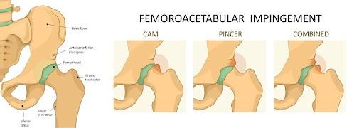 Types of Hip (Femoroacetabular) Impingement