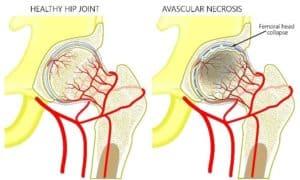 Avascular Necrosis (AVN) Infographic
