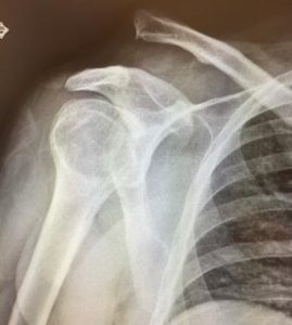 AC Joint Separation X-Ray