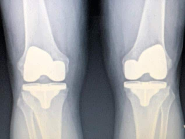 Knee X-Rays for Orthopedic Care