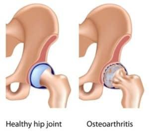 Hip Arthritis Illustration