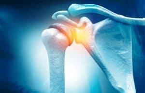 Shoulder Pain Illustration