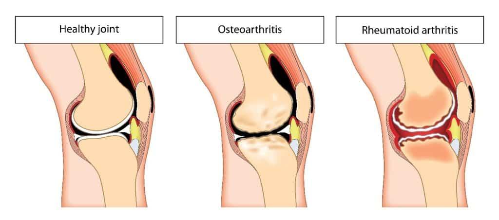 Knee Arthritis Types