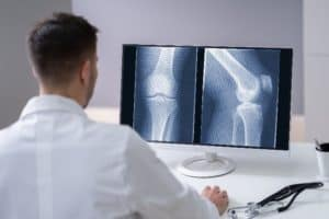 Knee Cartilage X-Ray