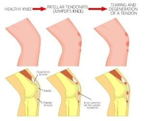 Patella (Kneecap) Tendonitis Infographic