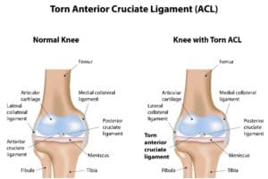 Comparing a healthy knee with a knee with a torn ACL