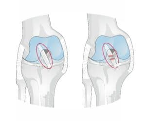 ACL Repair for Columbus & Grove City, OH patients