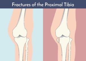 Shinbone fracture treatment for Columbus & Grove City, OH patients