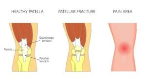 Kneecap Fracture Treatment for Columbus & Grove City, OH patients