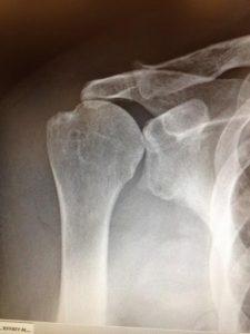 Rotator Cuff Tear Arthropathy X-Ray