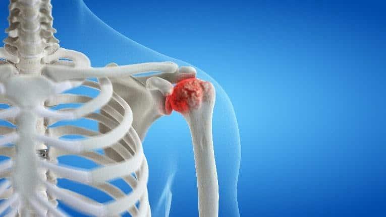 Shoulder Arthritis Treatment for Columbus & Grove City, OH