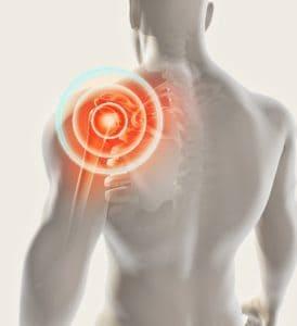 Adhesive Capsulitis Pain Source