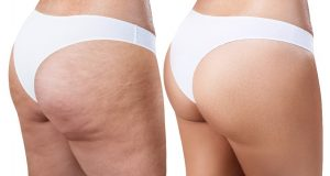 QWO Cellulite Removal for Long Island