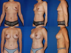 Mommy Makeover - combined tummy tuck and breast augmentation