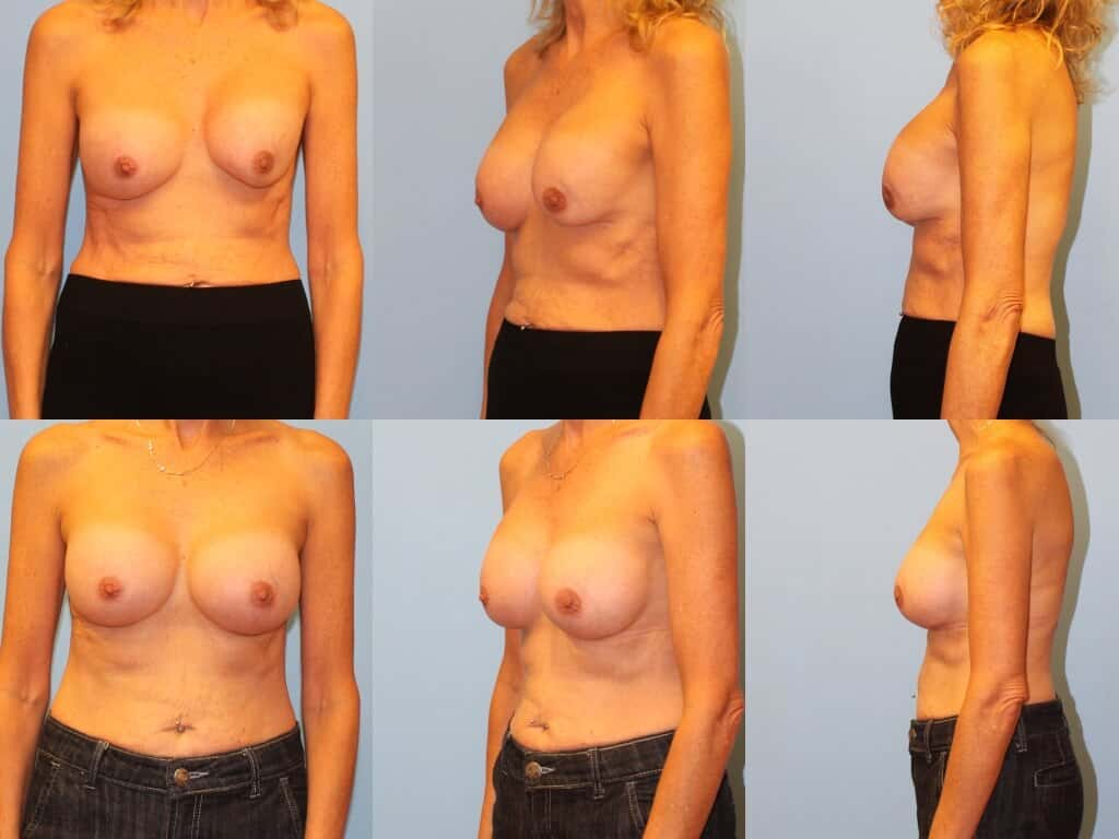 Before & after capsular contracture treatment